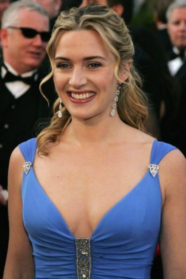 En la actualidad, Kate asegura no sentirse acomplejada por su apariencia. Foto:Getty Images