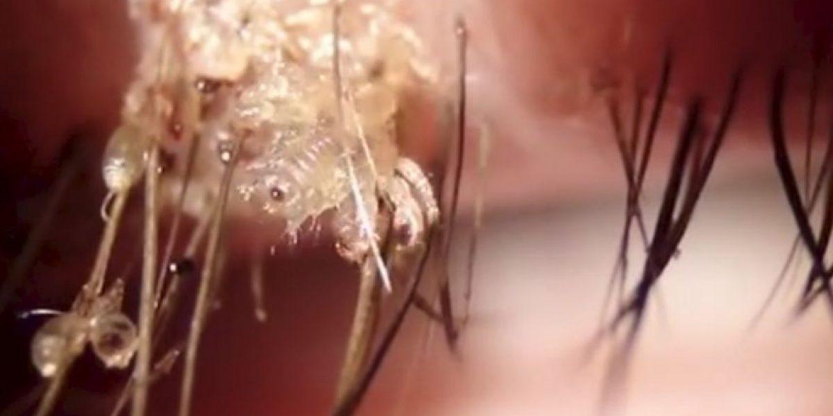 Este horrible parásito podría alojarse en sus pestañas