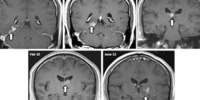 Existen gusanos que pueden llegar hasta el cerebro humano, tal como lo muestra esta tomografía. Foto:Vía Genome Biology