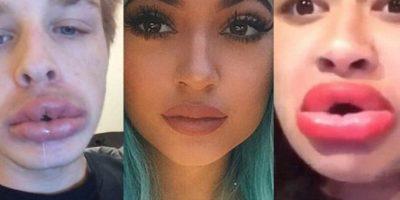 2. Cuando quieren tener unos labios como los de Kylie Jenner y se atreven a succionar sus labios dentro de botellas para lograr esto.