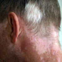 Esta enfermedad afecta por igual a los hombres y a las mujeres de todas las razas. Foto:Wikipedia