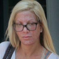 El rostro de Tori Spelling luce manchado. Foto:Grosby Group