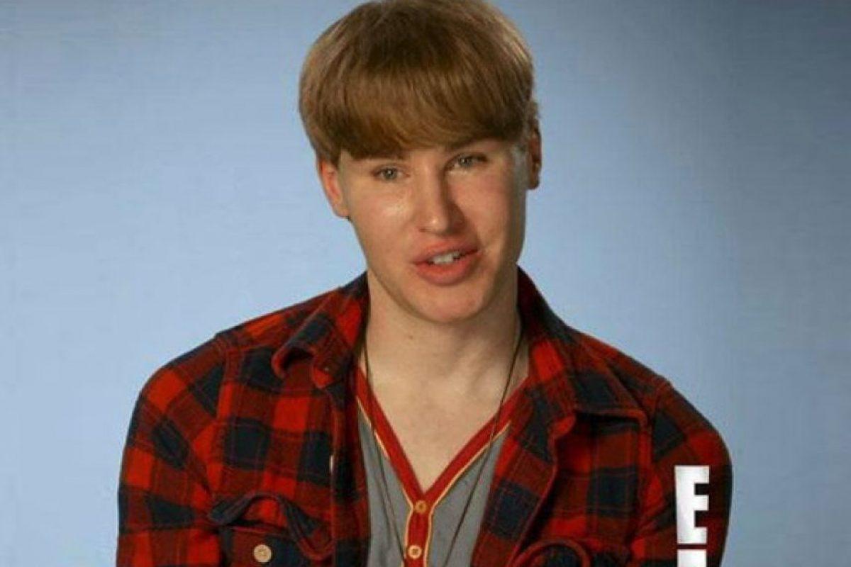 Su obsesión con Justin Bieber lo llevó hasta el quirófano. Foto:E! Entertainment