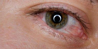 5. Derrames en los ojos (venitas rojas) Foto:Pinterest