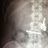 Las llaves en el estómago. Foto:Imgur