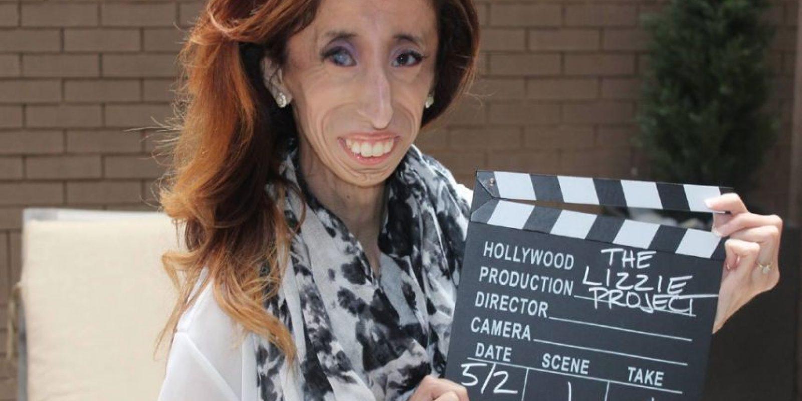 """La llamaron alguna vez """"La Mujer más Fea del Mundo"""". Foto:vía Facebook/Lizie Velásquez."""