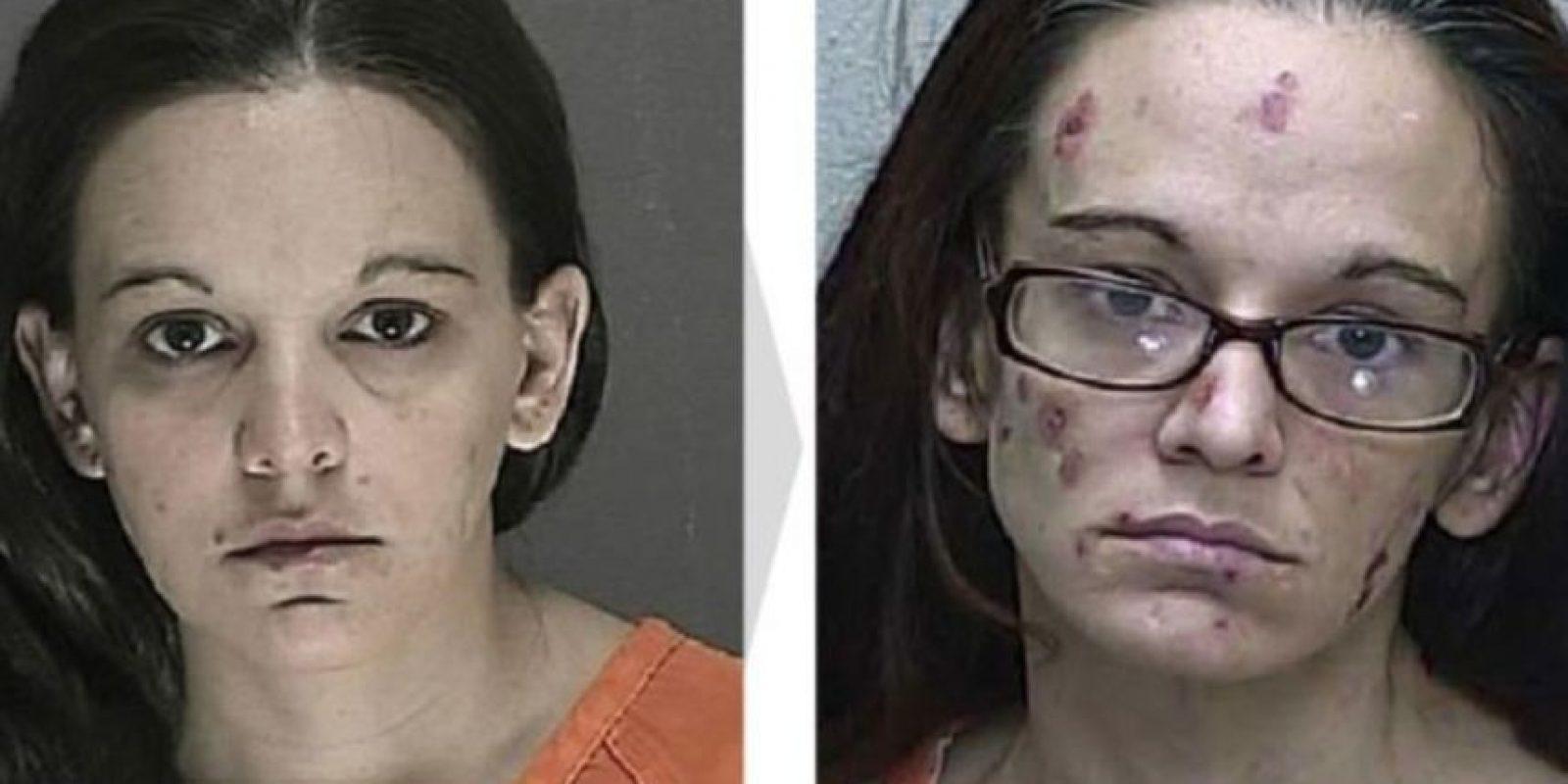 Antes y después Foto:Rrehabs