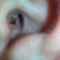 En este caso, un hombre grabó una araña que se escondía dentro de su oreja.
