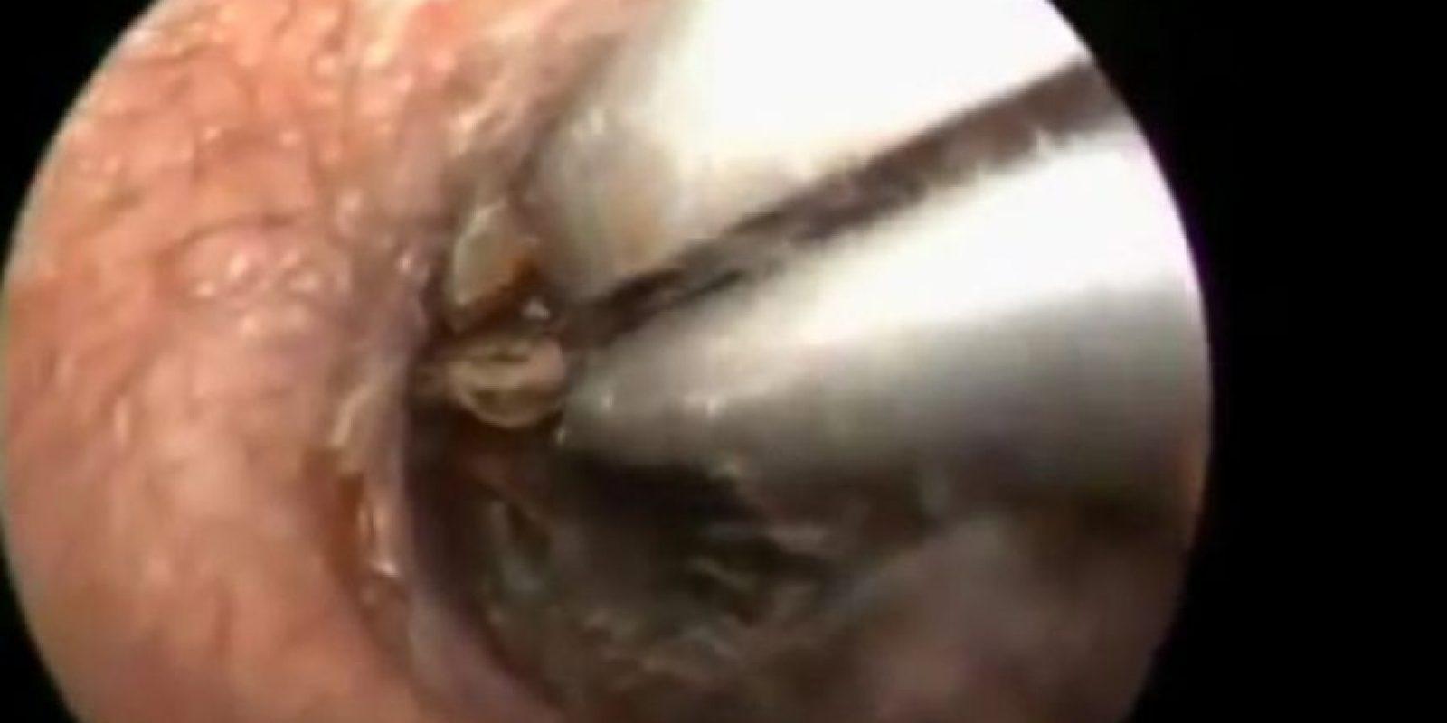 A este hombre le sacaron una cucaracha de la oreja Foto:Youtube