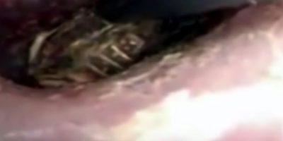 Así sacaron el ciempiés que esta mujer tenía en su oreja. Foto:Youtube
