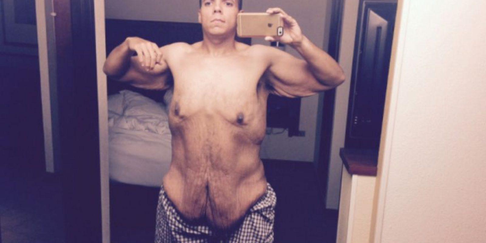 De esta manera perdió 120 kilos y ahora busca costearse una cirugía para removerse la piel sobrante. Foto:vía Jesse Shand