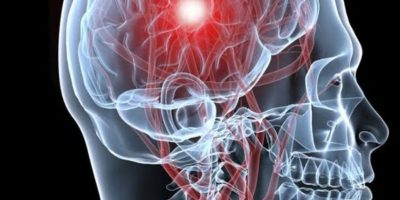 Hay dos clases principales de accidentes cerebrovasculares. El primero, llamado accidente cerebrovascular isquémico, es causado por un coágulo que bloquea u obstruye un vaso sanguíneo en el cerebro. Foto:Tumblr