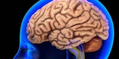 Los pacientes también pueden sentir dolor y adormecimiento después de un accidente cerebrovascular. Foto:Tumblr