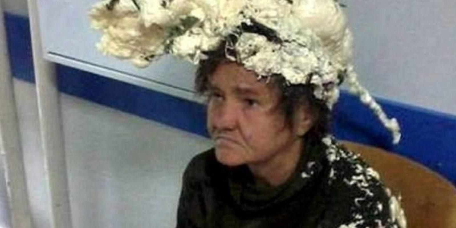 Siempre, pero siempre, fíjense en lo que puede pasar con sus productos para el cabello. Esta mujer cuya imagen recorre Internet usó espuma expansiva para construcción. Obvio, tuvo que ir al Hospital. Foto:vía Twitter