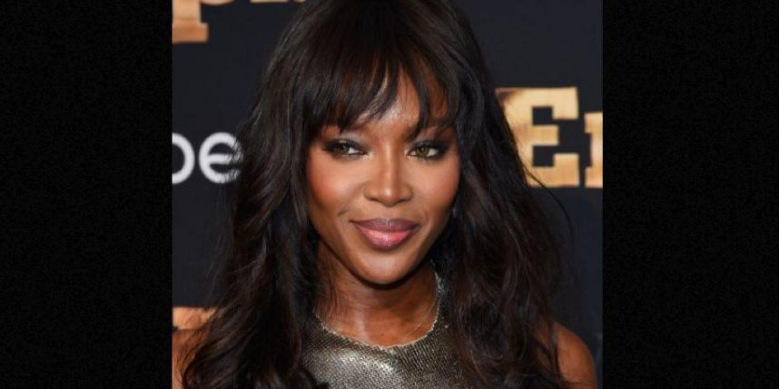 Naomi lo probó todo. Incluido el bótox. Foto:vía Getty Images