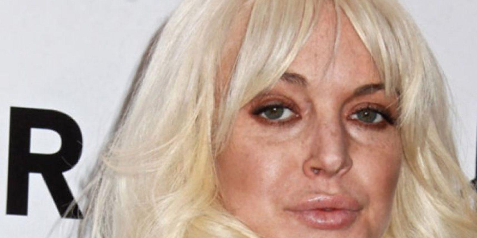 Comenzó con las drogas. Foto:vía Getty Images