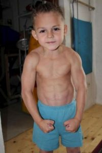 Actualmente tiene 8 años. Foto:Vía Facebook.com/Giuliano-Stroe