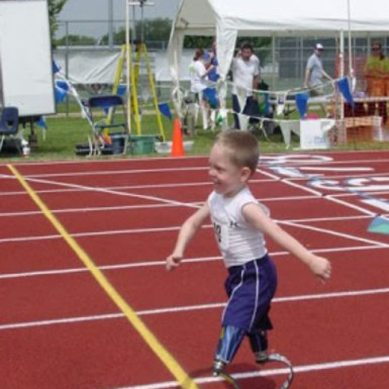 Cody McCasland nació con un problema en sus piernas pero ahora tiene un par para cada ocasión. Foto:Vía Facebook
