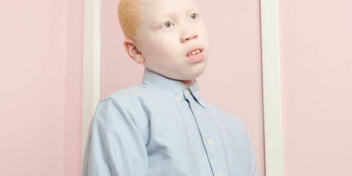 Fotos: Esta es la mirada de un artista sobre el albinismo