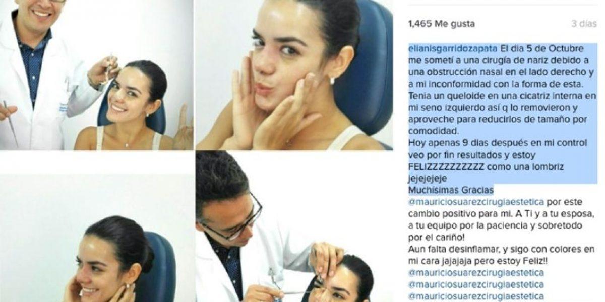 Fotos: Así luce Elianis Garrido tras sus cirugías de nariz y reducción de senos