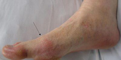 Este tipo de artritis ya no es propia del Medioevo. Sigue apareciendo. Foto:Wikipedia.