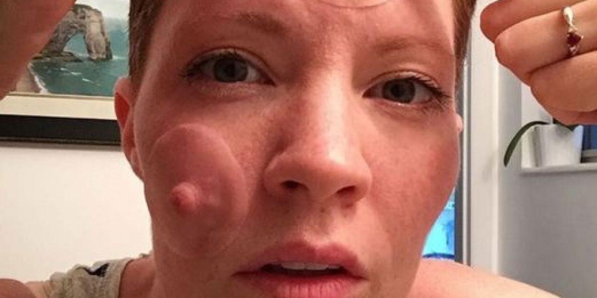 Mujer muestra sorprendente sesión de fotos de su mastectomía