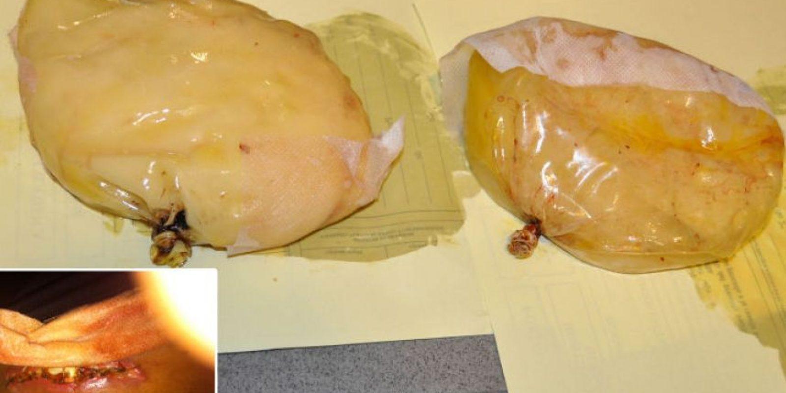 4. Una mujer fue detenida por transportar cocaína en sus implantes de senos, en 2012. Viajaba de Colombia a España Foto:Interior.gob.es