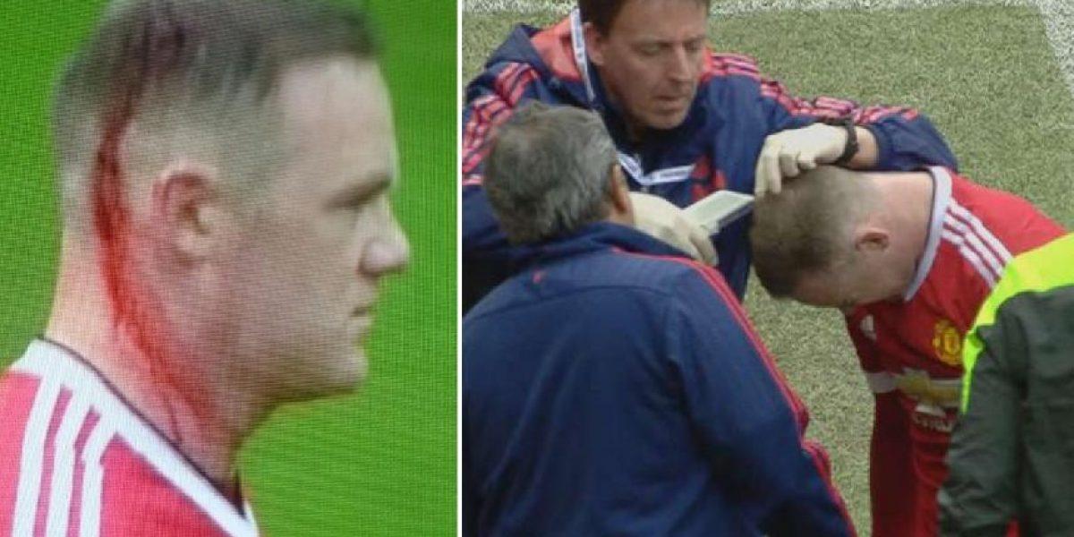 Video: A Rooney le cosieron la cabeza en pleno partido