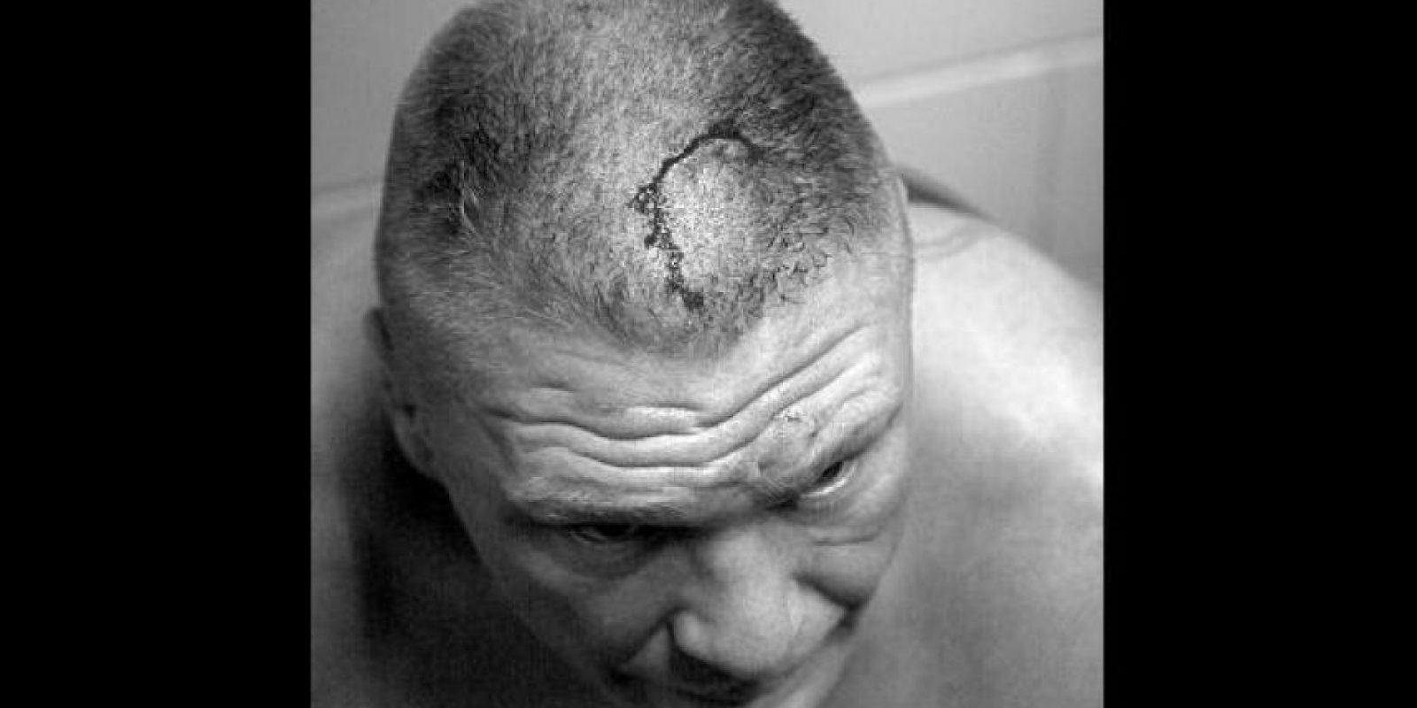 Pero sufrió una herida en la cabeza Foto:WWE