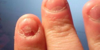 11. Morderse las uñas también puede causar gingivitis. Foto:Flickr