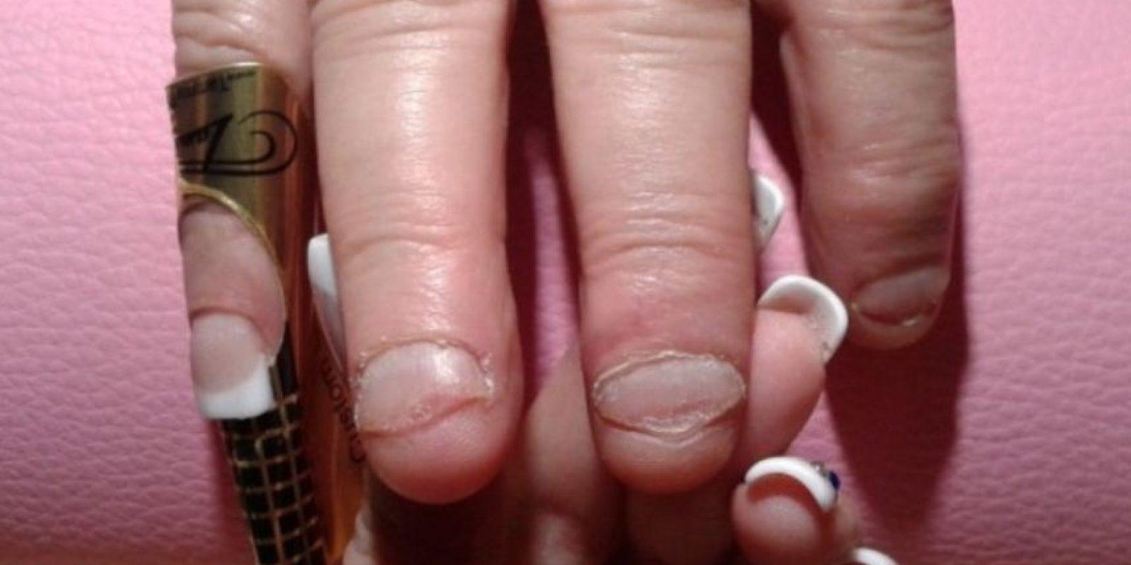 Esto, debido a que algunos pedazos se meten entre los dientes dañando las encías. Foto:Flickr