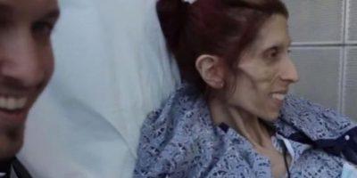 No podía caminar. Tenía osteoporósis. Foto:vía Facebook/Rachael Farrokh