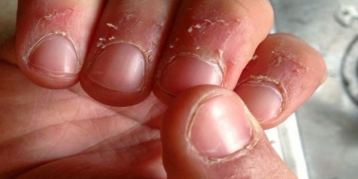 Por esta razón tienen padrastros alrededor de los dedos