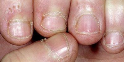 """7. Según un artículo publicado por la revista """"Time"""", morderse las uñas podría propiciar bacterias que incluyen salmonela, y escherichia coli, causando infecciones gastrointestinales fuertes. Foto:Wikimedia"""