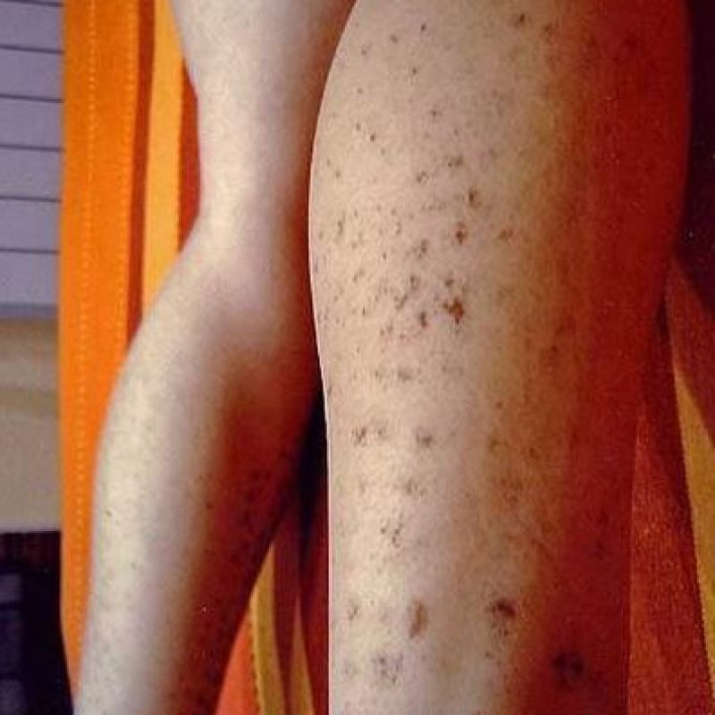 1. Pueden sufrir quemaduras luego de una depilación láser, tal como le pasó a esta mujer española. Foto:Vía Instagram/#DepilacionFail