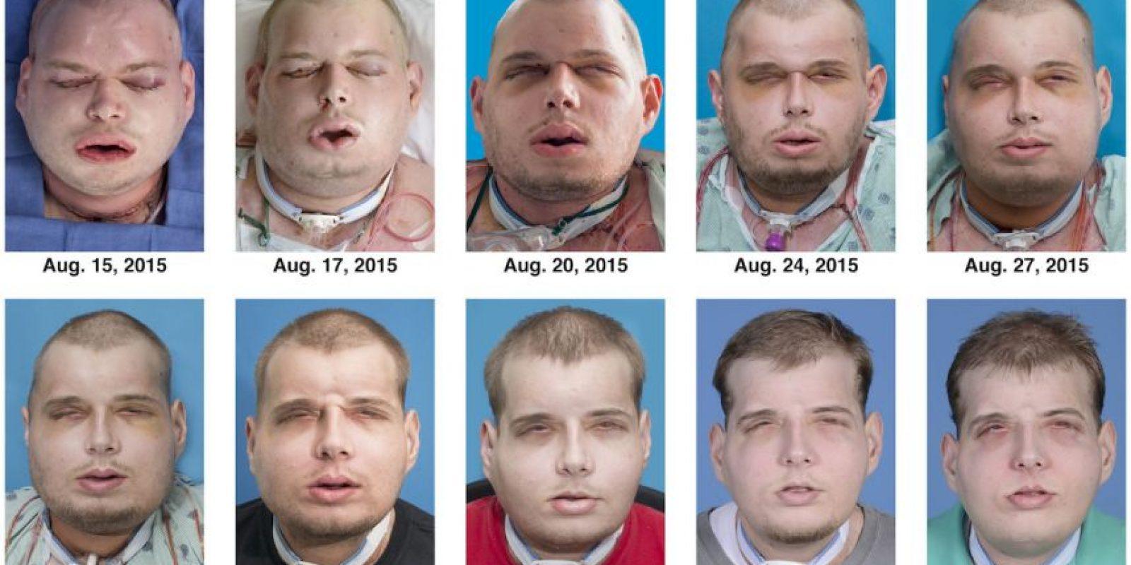 Y fue hasta el pasado agosto que logró conseguir su transplante tras una cirugía de 26 horas. Foto:AP
