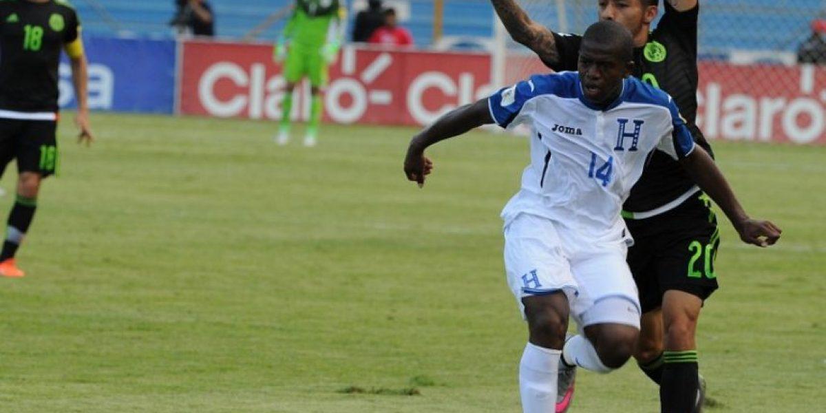 Video: La lesión más impactante de la Fecha FIFA