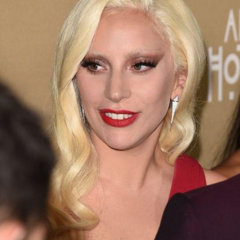 La cantante es una reconocida activista que promueve la aceptación de los enfermos de VIH/SIDA. Foto:Getty Images