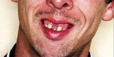 14 dentaduras peores que el sueño de perder los dientes Foto:Dogguie