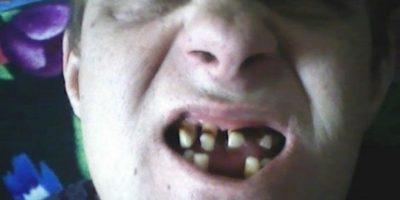 14 dentaduras peores que el sueño de perder los dientes
