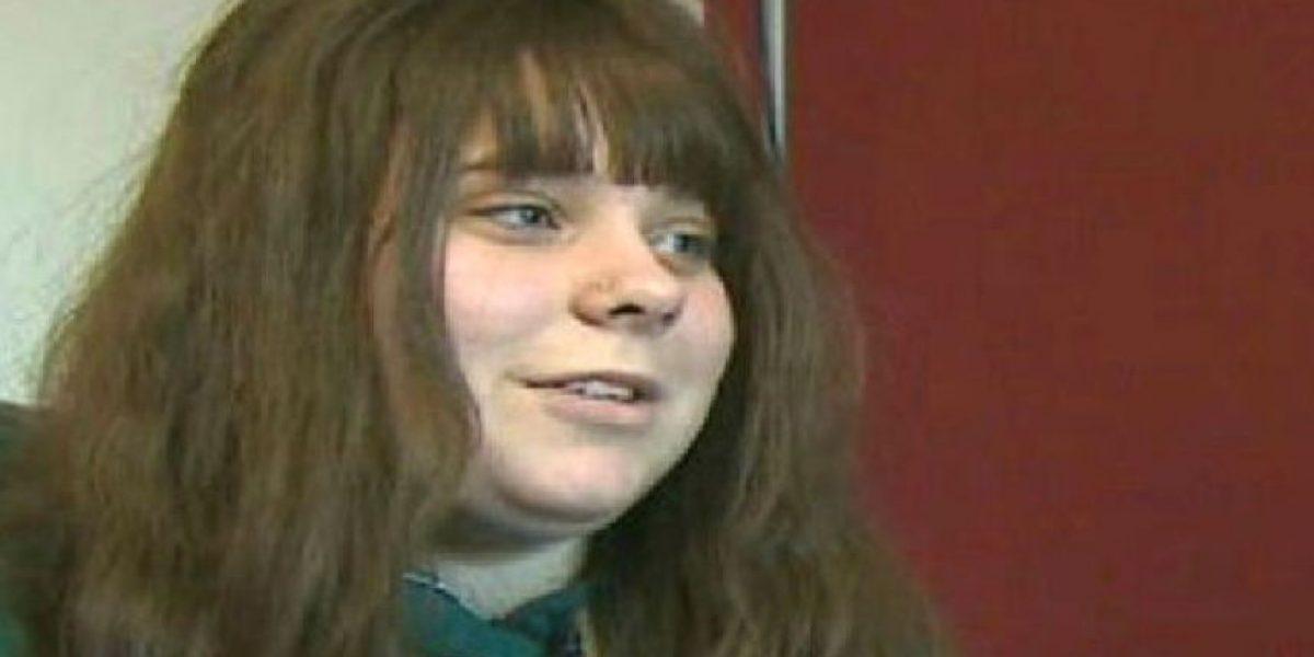 Mujer perdió el pelo y se volvió diabética al intentar combatir su acné