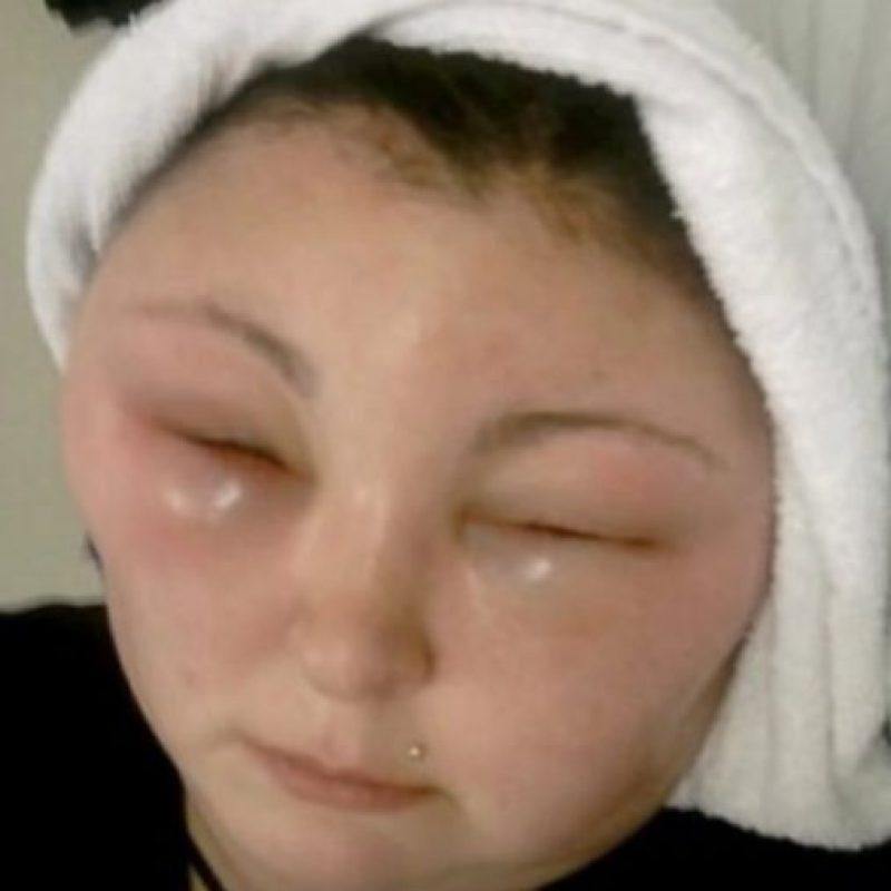Sin embargo, tuvo que ser hospitalizada y se quedó ciega temporalmente debido a una reacción alérgica. Foto:Tumblr