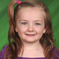 Así se veía la niña antes del accidente. Foto:Vía facebook.com/Schenectadyssupersurvivor