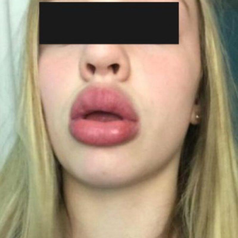 Y con los labios de Pepe la Rana. Foto:vía Twitter