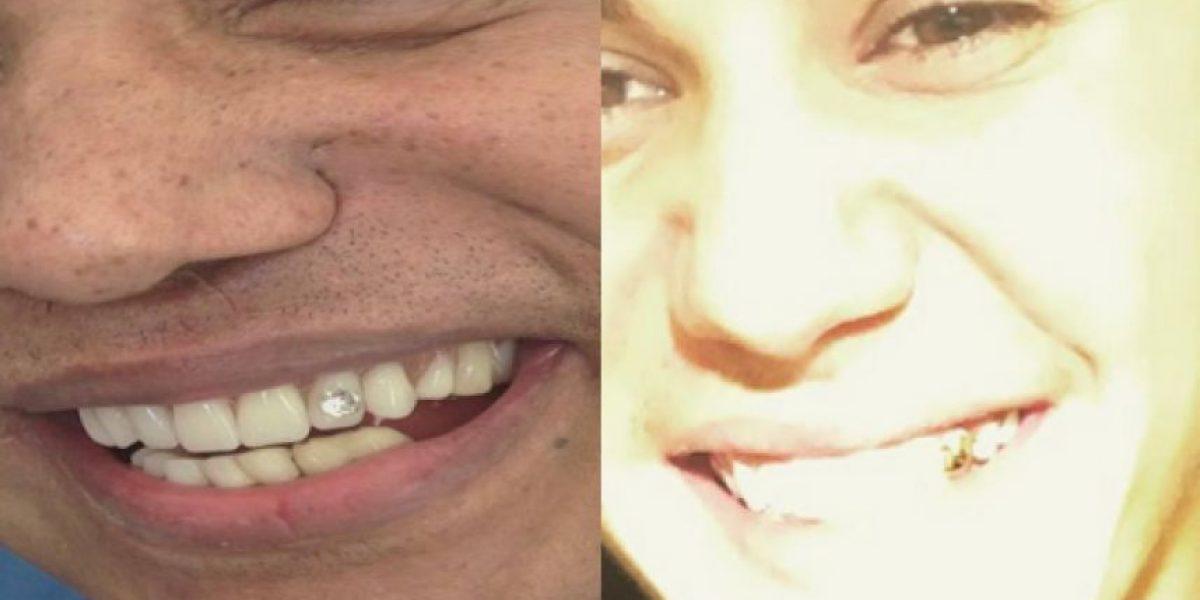Justin Bieber le sigue los pasos a Diomedes: se puso un diente de oro