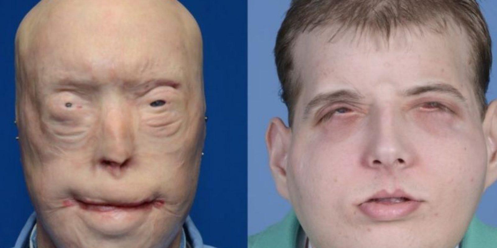 La cirugía de reconstrucción de cara del bombero Patrick Hardison, de 41 años, duró 26 horas y estuvo a cargo del doctor Eduardo Rodríguez. Foto:AFP