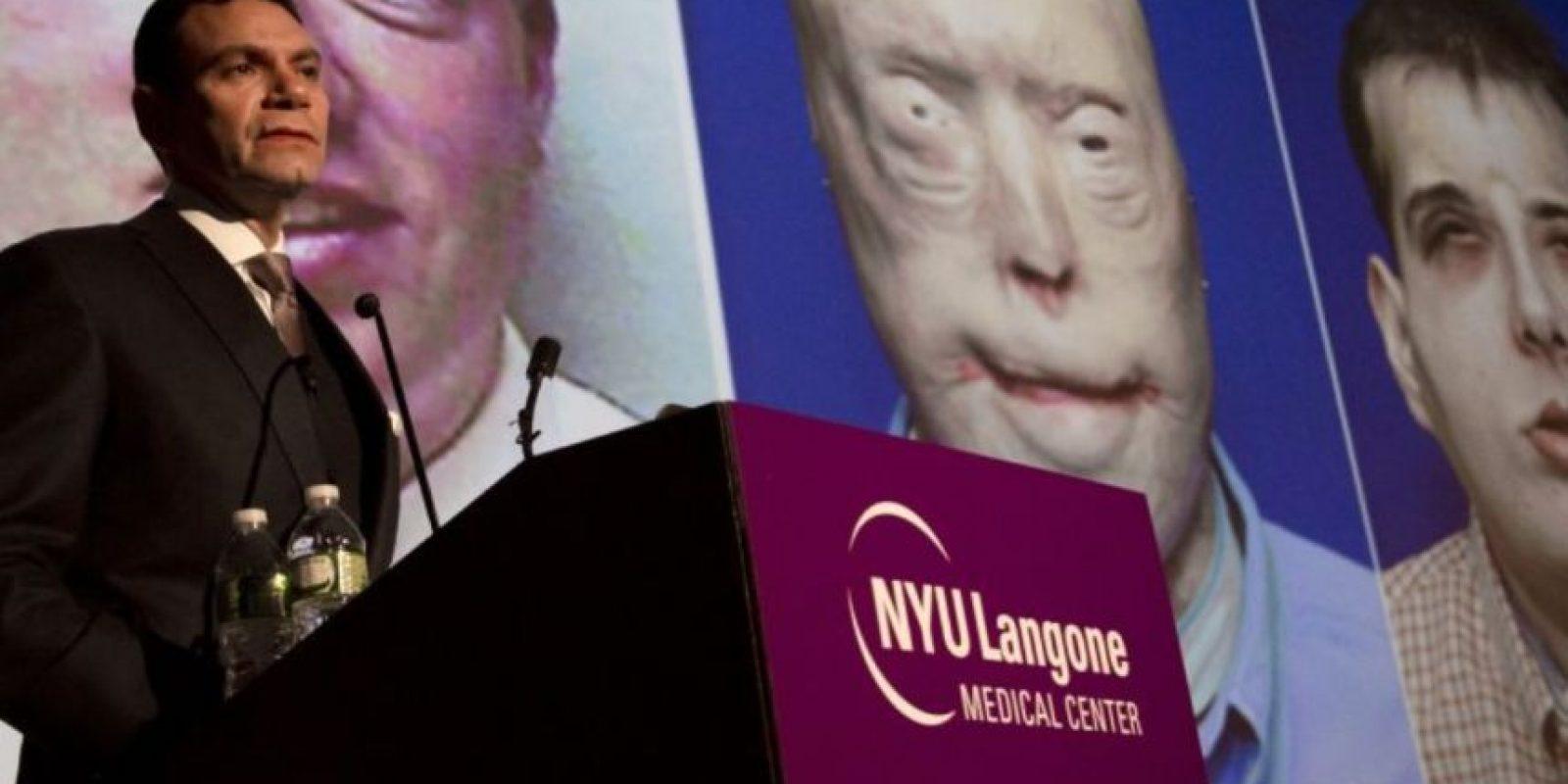 5. Bombero recibe el trasplante de rostro más complejo de la historia Foto:AFP