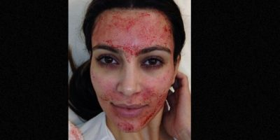 Kim Kardashian se aplicó sangre como tratamiento de belleza. Foto:vía Instagram