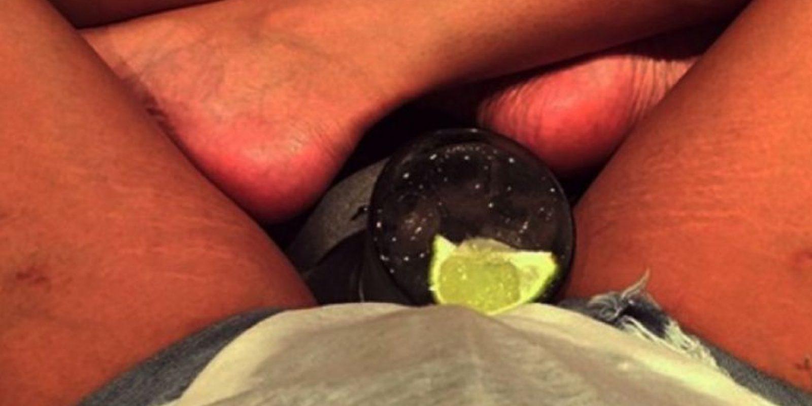 Chrissy Teigen mostró que tiene estrías en sus piernas. Foto:vía Instagram