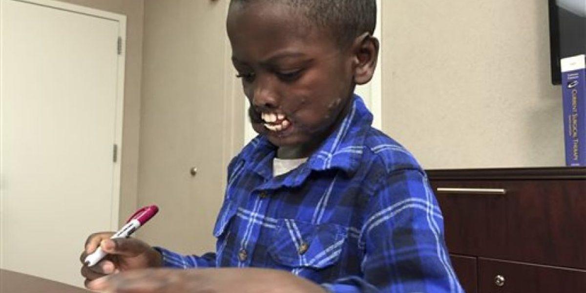 Niño desfigurado será sometido a complicada cirugía
